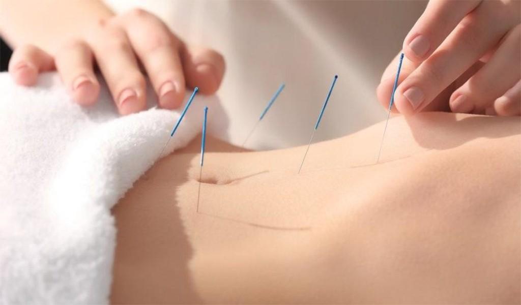 Akupunktur Hakkında Tüm Bilmedikleriniz: Doç. Dr. Rabia Terzi