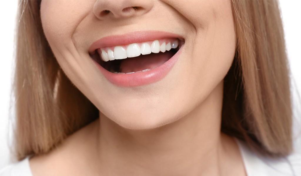Dijital Gülüş Tasarımı Nedir ?