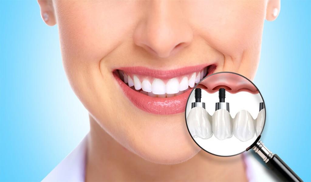 Diş İmplantı (Dental İmplantlar) Nedir? Uzman Diş Hekimi Burak Kapılı