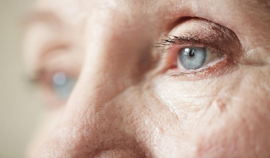 Gözlerin Sinsi Düşmanı Glokom Kör Edebilir: Dünyagöz Hastanesi